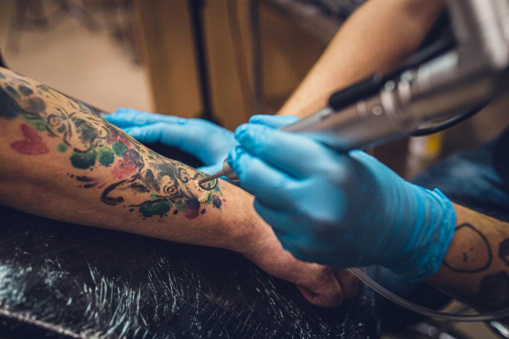 10 faktów i mitów o laserowym usuwaniu tatuażu